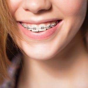 Close up portrait of smiling adult female showing dental braces.