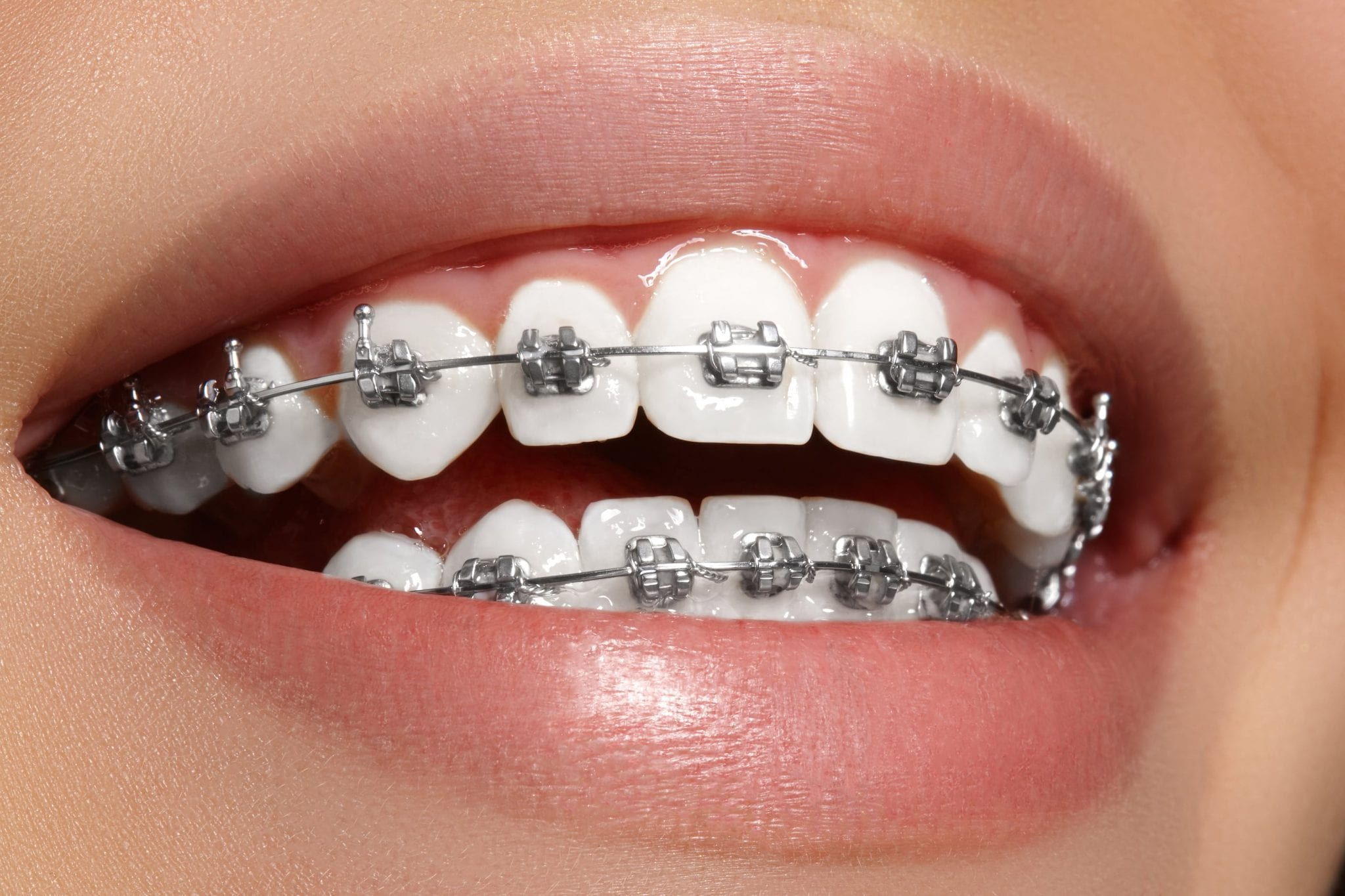 Beautiful macro shot of white teeth with braces. Dental care photo. Beauty woman smile with ortodontic accessories. Orthodontics treatment. Closeup of healthy adult female mouth