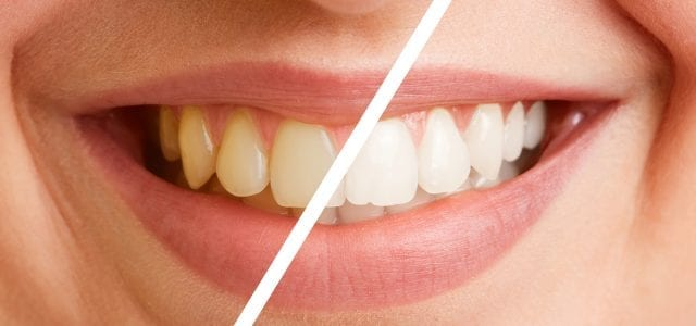 Comparison of teeth of a young woman before and after a tooth cleaning