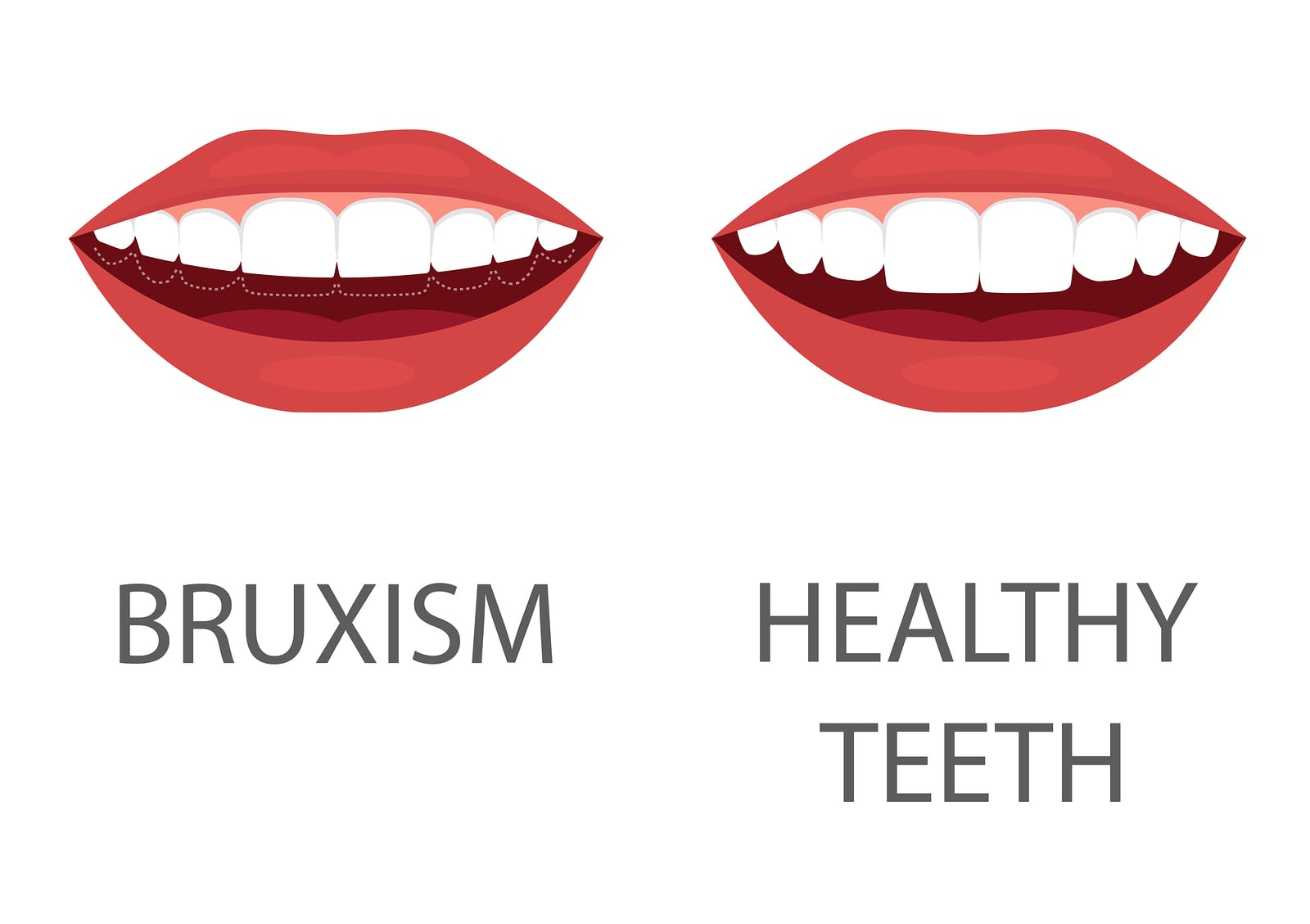 illustration of the effects of bruxism