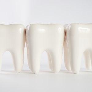 Teeth in a line