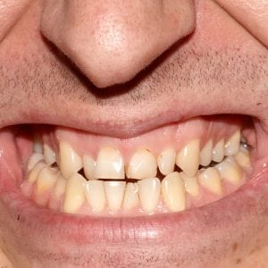 Mouth of man with crooked yellow overlap, crowding teeth close-up, decayed tooth. Not correct, broken bite