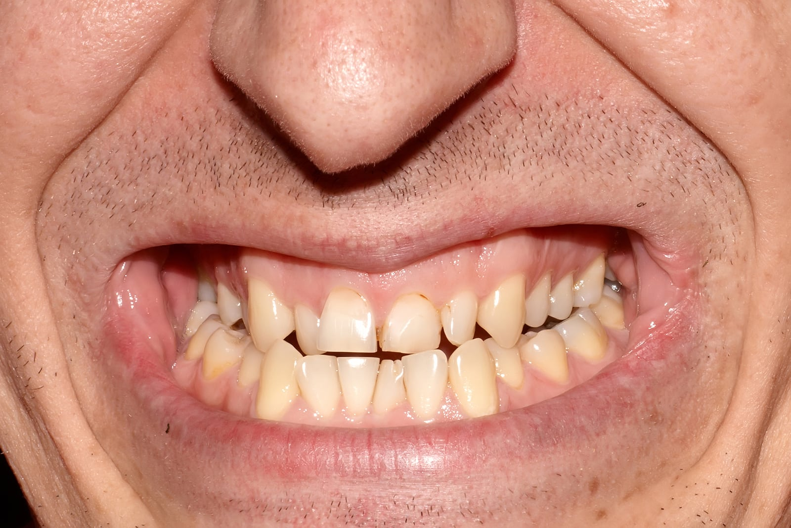 Study Shows Teeth Linked To Stomach Problems