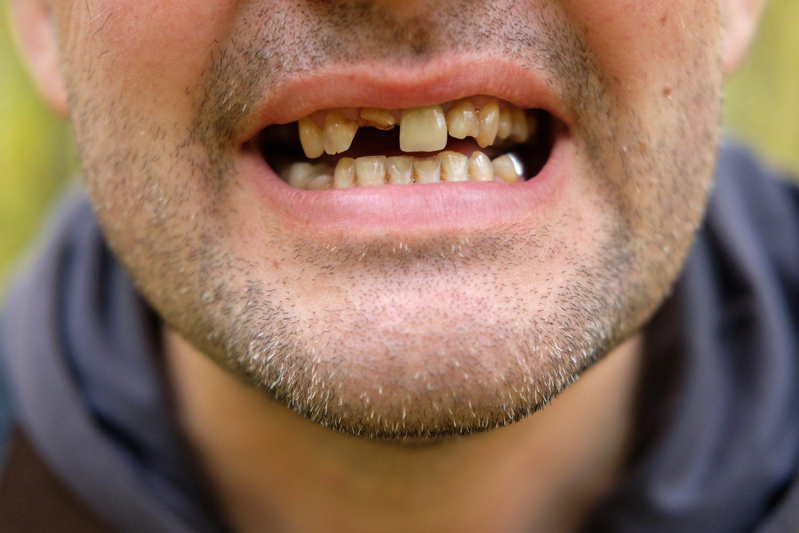 Study Tooth Loss In Middle Age Linked To Heart Disease