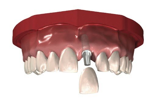 Tooth Implant illustration