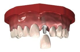 dental crown image
