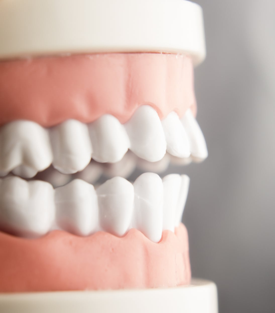 teeth and gums anatomical model showing scaling