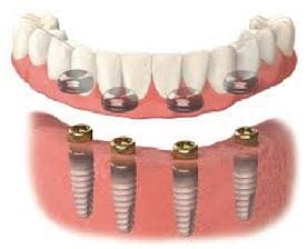 partial overdenture illustration