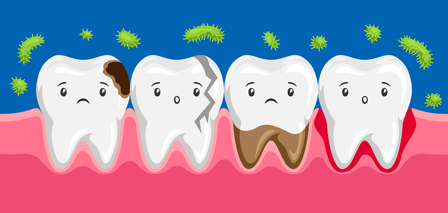 A group of infected cartoon teeth are saddened by poor dental hygiene and threatened by the approach of harmful bacteria.