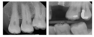 missing tooth xrays
