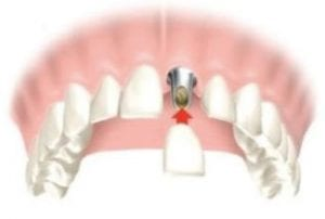 single unit crown dental implant illustration